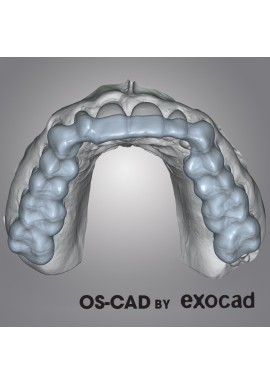 MODEL CREATOR - OS-CAD BY EXOCAD