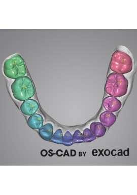 CHIRURGIE GUIDEE - OS-CAD  BY EXOCAD