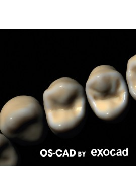 ORTHODONTIE - OS-CAD  BY EXOCAD