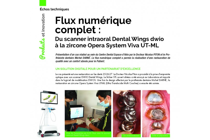 Flux numérique complet : du scanner intraoral Dental Wings dwio à la zircone Opera System UT-ML